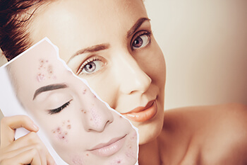 Woman With Clear Skin Showing a Picture of Herself With Acne