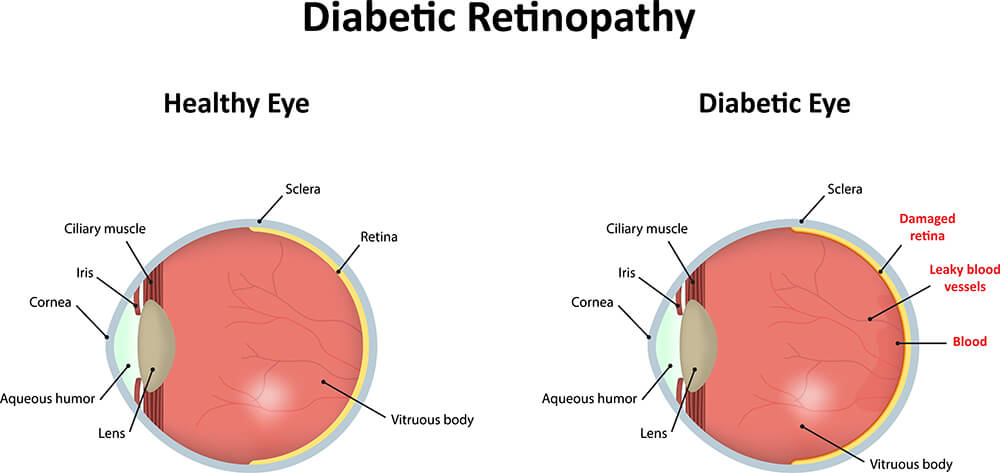 Chart Illustrating how Diabetic Retinopathy Affects the Eye