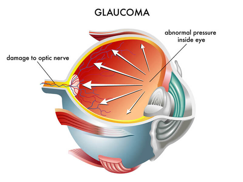 Chart Illustration How Glaucoma Affects an Eye