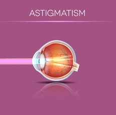 Illustration of How Light Enters an Eye With Astigmatism