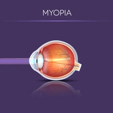 Illustration Showing How Light Enters an Eye With Myopia