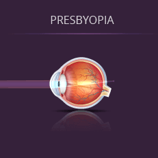 Illustration of How Light Enters an Eye With Presbyopia