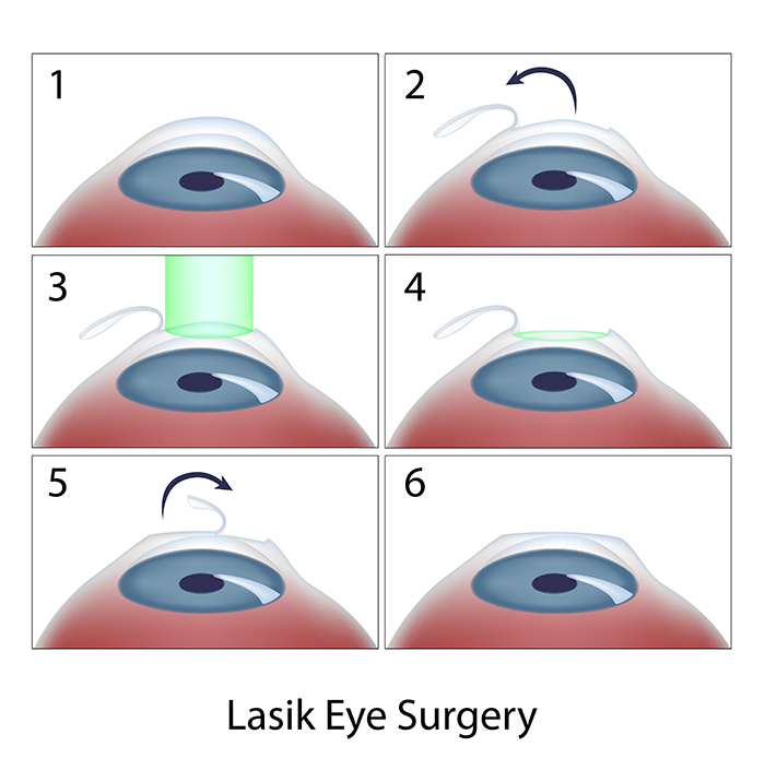 Chart Illustrating the Steps of LASIK Surgery