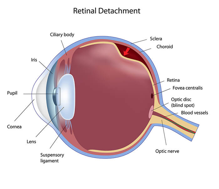 Chart Illustrating a Retinal Detachment in the Eye